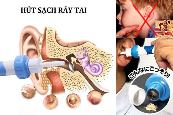 Sử dụng máy hút ráy tai rất an toàn kể cả cho trẻ nhỏ